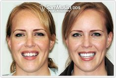 Will Porcelain Veneer Teeth Change the Shape of the Face?