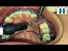 Dental Implant Procedure, Dental Implants, Palate Expander, Braces Problems, Dentist Logo, Braces Colors, Dental Braces, Dental Art, Manualidades