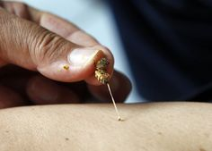 Summer is here and the chance of getting stung by an annoyed bee or wasp is high. So do you know what to do when a bee or wasp stings you? Manila, Home Remedies, Natural Remedies, Wasp Stings, Vw Camping, Bee Farm, Veneno, Allergy Remedies, Bee Sting