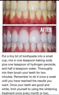 toothpaste, baking soda, hydrogen peroxide to whiten teeth! sounds awesome, but for some reason, if feel like i might poison myself haha