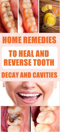 Natural Remedies For Allergies Home Remedies To Heal And Reverse Tooth Decay And Cavities – Green Holistic Tips What Causes Tooth Decay, Reverse Cavities, Remedies For Tooth Ache, Home Remedies For Cavities, Heal Cavities, How To Prevent Cavities, Receding Gums, Best Oral, Healthy Teeth