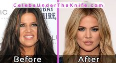 Khloe Kardashian Plastic Surgery Photos Before After #celebsundertheknife #celebs #celebrity #plasticsurgery #celebritysurgery