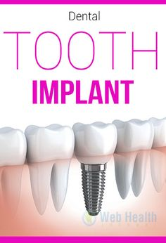Dental Tooth Implant : #healthy_living