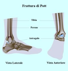 A dor no tornozelo pode ter muitas causas, incluindo: fratura do maléolo peroneal,tibial, fibular, entorse, inchaço, tendinite do tendão de Aquiles, bursite do calcâneo ou lesão, também pode ser o resultado de artrite ou uma sobrecarga. O tornozelo é uma rede complexa de ossos, ligamentos, tendões e músculos. Ela é suficientemente forte para suportar o peso do corpo, mas é propenso à lesão e a dor.