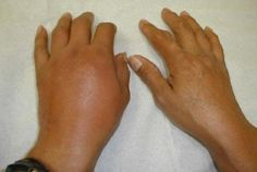 There are many home remedies for gout that are effective and absolutely free of side effects.    Read more: http://homeremedieslog.com/health-topics/arthritis/gout/remedies-23/