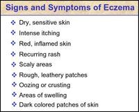 Products Made with Hemp Seed Oil Effective In Treating Eczema
