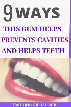 Xylitol for Healthy Teeth and Gums. Prevent Cavities with xylitol gum, mints and spray. Get rid of cavities and tooth decay. Advice by a dental hygienist. Oral Health, Health Tips, Health Care, Health Benefits, How To Prevent Cavities, Tooth Pain, Healthy Teeth, Dental Hygienist, Dental Care