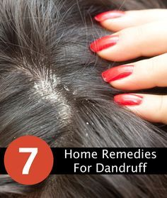 thicker hair remedies How to Get Rid of Dandruff Using Home Remedies - some of the best home remedies for removing dandruff as fast as possible. - Best home remedies for removing dandruff as fast as possible. Dandruff Solutions, Home Remedies For Dandruff, Hair Remedies For Growth, Acne Remedies, Natural Remedies, Health Remedies, Hair Growth, How To Remove Dandruff, Getting Rid Of Dandruff