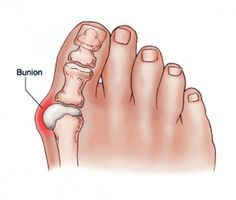 Bunions are salt deposits and their formation is started by tonsillitis, influenza, poor metabolism, gout, rheumatic infection, improper