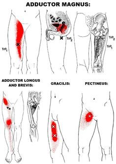hip adductors are a group of 5 muscles that make up the bulk of the inner thigh mass. The primary function of this group is, surprise, hip adduction! Hip Pain, Knee Pain, Fitness Workouts, Hip Flexor Exercises, Stretches, Hip Stretching Exercises, Sciatica Exercises, Inner Thigh Muscle, Psoas Release