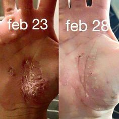 """I personally know the physical and emotional pain that eczema causes. I love seeing people get relief from getting their guts healthy!   80% of your immune system is controlled by your gut. Kristie Hawley shares~ """"I was very hesitant to post this because it's pretty nasty. But I have to get over my embarrassment because - guess what- it's very real! I have had this loveliness since right after Christmas. Nothing was clearing it up (prescription and over the counter). After seeing the…"""