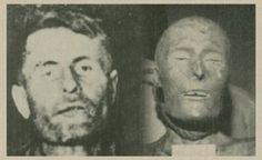 The bizarre story of Elmer McCurdy - mummified in 1911, found painted neon orange and hanging in an amusement park in 1976.  Click for the full (unbelievable!) story.