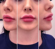 lip enhancement by me using Juvederm XC ultra 1 syringe. filler before and after 1 syringe Lip Injections Juvederm, Botox Lips, Dermal Fillers Lips, Lip Fillers, Botox Cosmetic, No Lips, Facial Aesthetics, Lip Augmentation, Lip Shapes