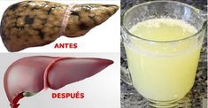 """Welcome to the Web of very healthy """"recipes and health"""". Home Remedies, Natural Remedies, Healthy Life, Healthy Eating, Colon Cleansers, Salud Natural, Purifier, Atkins Diet, Health Facts"""
