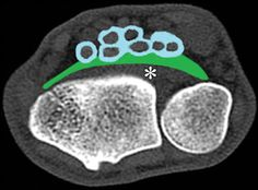 Axial CT image of the wrist shows the space of Parona (green), which is a potential space in the distal forearm between the fascia of the pronator quadratus muscle (*) and the flexor digitorum profundus tendon sheath (blue). From Radiographics