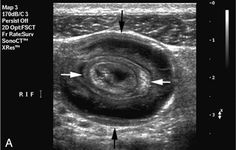 Intestine - Intussusception - Target Sign.