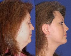Alicia – Youthful Reflections Facelift / Reflection Lift