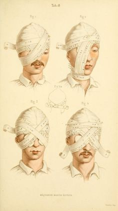 """rosievandoll: """" Manual of surgical bandages, devices and dressings, 1859. """""""