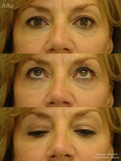 Lower Eyelid Filler before and after patient photos from New York City Plastic Surgery Specialist Dr. Cheek Injections, 55 Year Old Woman, Liquid Facelift, Cheek Lift, Tear Trough, Cheek Fillers, Eyebags, High Cheekbones