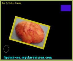 How to reduce lipoma - Truth About Lipoma. You have nothing to lose! Visit Site Now