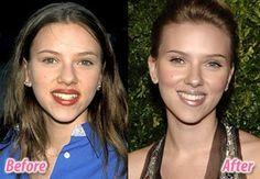 Avant/après chirurgie esthétique. Radieuse Scarlett Johansson et son charmant nouveau petit nez. Clic 2X.