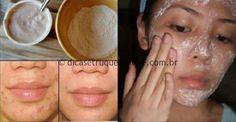Acne e espinha são problemas de pele bastante comuns. O pior é que, dependendo do tratamento, podemos ficar com marcas escuras e cicatrizes para sempre. Essas marcas afetam de maneira intensa a autoestima, fazendo que com que as pessoas gastem… Continue Reading →