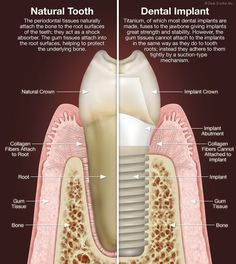 Dental Implant Maintenance - Implant Teeth Must Be Cleaned Differently