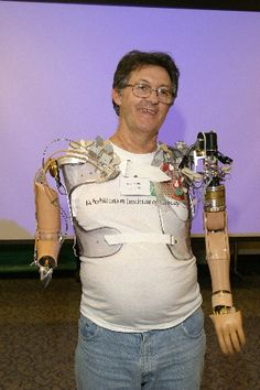 "Jesse Sullivan lost both of his arms . He is  first real bionic man.    ""NECAL uses nerve-muscle grafts in amputees to gain added control signals for an artificial arm. Doctors take nerves that used to go to the arm and move those nerves onto chest muscles. The nerves grow into the chest muscles, so when the patient thinks ""close hand,"" a portion of his chest muscle contracts and electrodes that detect this muscle activity tell the computerized arm when to close the hand."