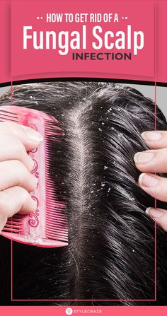 [ Hair Care : How To Get Rid Of A Fungal Scalp Infection: Has your scalp been itching constantly? Do you come across flaking skin and pus-filled boils Apple Cider Vinegar Dandruff, Apple Cider Vinegar For Hair, Healthy Scalp, Healthy Hair Tips, Healthy Life, How To Reduce Dandruff, Sores On Scalp, Itchy Scalp, Hair And Beauty