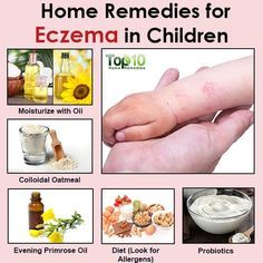 Natural Remedies for Eczema in Children. Natural Remedies For Eczema In Babies Home Remedies For Colds For Babies, Home Remedies For Spiders, Home Remedies For Eczema, Top 10 Home Remedies, Cold Home Remedies, Skin Care Remedies, Natural Health Remedies, Herbal Remedies, Acne Remedies