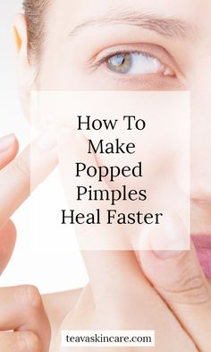 How to Make Popped Pimples Heal Faster - Teava Skincare Pimples On Chin, Pimples Under The Skin, Oily Skin Care, Acne Prone Skin, Scab Healing, Cystic Pimple, Hair