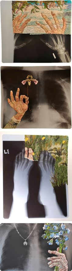 Matthew Cox's remarkable x-ray and embroidery work surreal frida kahlo style textile art and xray photo, contemporary mixed media collage art
