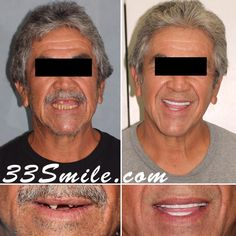 We have already posted this patient but wanted to shared the better quality after photos! A total of 22 teeth restored!(these are not dentures)  #drjamsmiles #33Smile .  . All photos and video of patients are of our actual patients.  All media is the  of Cosmetic Dental Associates.  Any use of media contained herein is prohibited without written consent. . . #satx #satxdentist #dentistry #goals #smile #teeth #instagoals #transformationtuesday #beforeandafter #whiteteeth #perfect… Insta Goals, Dental Cosmetics, Smile Teeth, Dental Procedures, Cosmetic Dentistry, Transformation Tuesday, Beautiful Smile, Restoration, Good Things