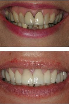 before and after all in 1 days work White Teeth Tips, Cracked Tooth, Celebrity Smiles, Cosmetic Dentistry, Day Work, Beautiful Smile, Health Tips, Crown, Corona