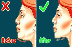 Lose Your Face Fat With These Simple Exercises - TheHealthRays Gym Workout For Beginners, Gym Workout Tips, Easy Workouts, Cheek Fat, Clear Skin Fast, Reduce Face Fat, Face Yoga Exercises, Health Activities, Sagging Skin