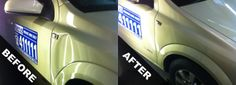 Dent Removal in St Helens Remove Dents From Car, All We Know, Auto Body Repair, All Over The World, How To Remove