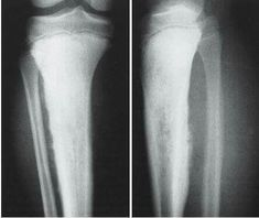 onion skin pattern of ewing sarcoma | Msk | Ewing's ...