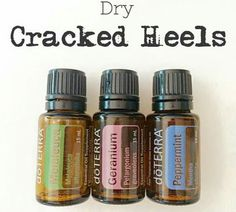Dry cracked heels 10 drops each with fco
