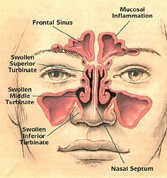 how to know if you have a deviated septum