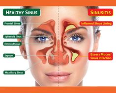How To Relieve Your Sinus Infection In 20 Seconds - The House of Health