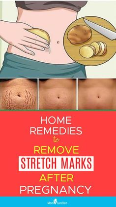 16 Working Home Remedies To Reduce Stretch Marks After Pregnancy How To Remove Stretch Marks After Pregnancy: 16 Home Remedies & Medical Treatments Stretch Mark Remedies, Stretch Mark Removal, Stretch Mark Treatment, Pregnancy Care, After Pregnancy, Reduce Stretch Marks, How To Get Rid Of Stretch Marks, Pregnancy Information, Baby Care Tips