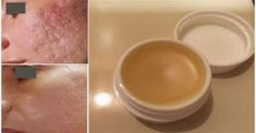 Makeup & Skin Care: Homemade creams to remove face stains Scar Cream, Scar Removal Cream, Hair Removal, Getting Rid Of Scars, Scar Treatment, Acne Scars, Natural Treatments, Cellulite, Diy Beauty