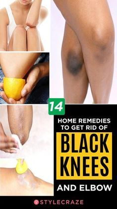 14 Home Remedies To Get Rid Of Black Knees And Elbow Do you find it embarrassing to wear short dresses, shorts, or anything that shows off your knees? Wondering how to get rid of dark knees? Here's your rescue Beauty Tips For Face, Beauty Skin, Beauty Hacks, Beauty Care, Face Tips, Diy Beauty, Beauty Ideas, Beauty Secrets, How To Lighten Knees