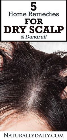 You have silky long hair, but you are ashamed of dandruff? Avoiding to wear a black dress? And it also causes itching? It's time to say goodbye to them, you can get a dandruff free hair with the help of natural home remedies for dandruff. Dry Scalp Remedy, Home Remedies For Dandruff, Natural Home Remedies, Hair Dandruff, Anti Dandruff Shampoo, Home Remedies For Tanning, How To Cure Pimples, Dark Circles Under Eyes, Free Hair