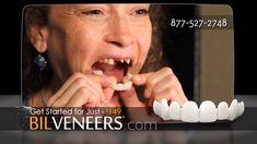 Snap On Smile Alternative – 149 US-Dollar - - Another! Toothpaste Pimple, Homemade Toothpaste, Veneers Teeth, Dental Veneers, Snap On Smile, Teeth Clip, Misaligned Teeth, Beautiful Teeth, Teeth Braces