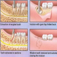 Side Effects Of Dental Extraction