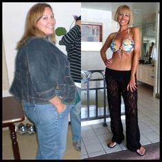 Life after losing a hundred fifty pounds with a vertical sleeve gastrectomy left me with lots of excess skin. Before I had my vertical sleeve I knew I would have excess skin. I had no idea how bad it would be and how it would make me feel. I had just lost 150 pounds and felt like a failure, I could not look at myself in the mirror. I hid under spanks and baggie cloths everyday. I felt like people could only see the skin and knew I had lost a lot of weight.  ~Amy P.