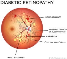 What Causes Diabetic Retinopathy Diabetic retinopathy is the most common form of diabetic eye disease, in which the light sensitive portion at the back of the Diabetic Retinopathy Treatment, Diabetic Eye Disease, Eye Anatomy, Eye Facts, The Retina, Diabetes In Children, Eyes Problems, Diabetes Mellitus, Cure Diabetes