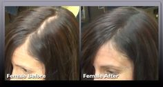 27 year old Female who is using Infinity Fibers.  InfinityHairBrand.com 855-Hair-Fiber (424-7342) Instant Hair Loss Concealing Fibers