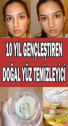 10 yıl gençleştiren doğal yüz temizleyici You will look young for 10 years with this natural facial cleanser that you can prepare with the materials available at home! Natural Facial Cleanser, Facial Cleansing, Natural Skin Care, Natural Beauty, Skin Cleanse, Best Skincare Products, Clean Face, Homemade Skin Care, Skin Problems